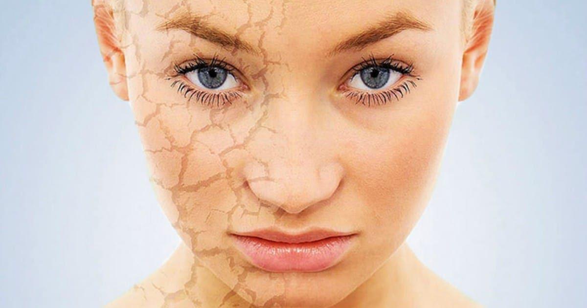 Хватит шелушиться! Проблему сухой кожи лица можно навсегда решить, применяя эти простые методы!