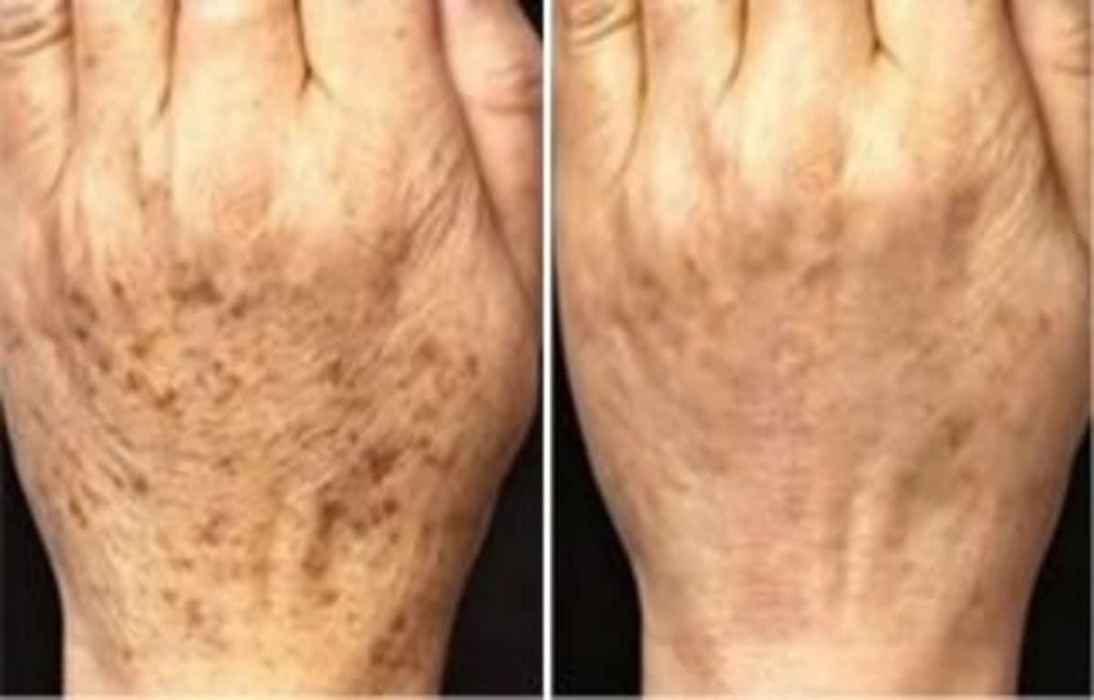 Боремся с нежелательной пигментацией кожи. Вам понадобятся всего 2 ингредиента, которые есть в каждом доме!